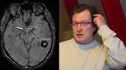 Miltä aivoverenvuoto tuntuu - diagnoosi