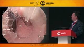 Эндоскопическое лечение дивертикула Ценкера. Что может быть нового?