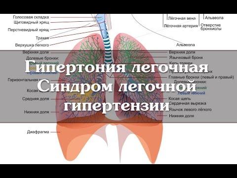 Гипертония легочная. Синдром легочной гипертензии - YouTube