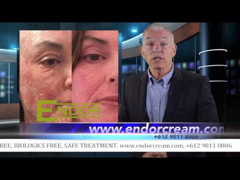 ENDOR – Treating Rosacea, Psoriasis & Eczema without steroids