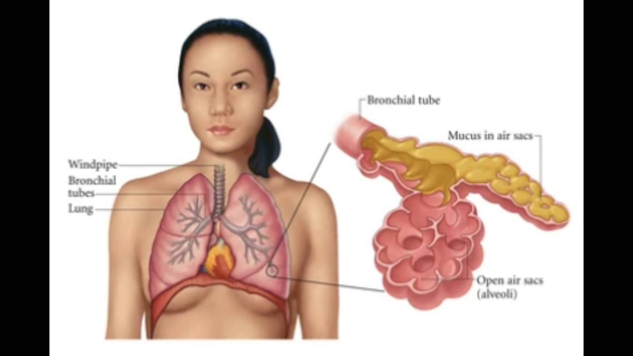 Pneumonia: The Symptoms To Look Out For Pneumonia: The Symptoms To Look Out For new pictures