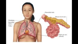 Walking Pneumonia Symptoms in Adults