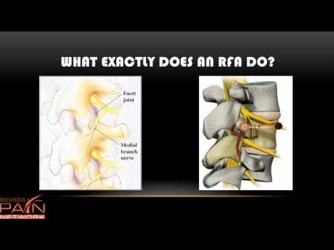 Radiofrequency Ablation Explained By Las Vegas Pain Management Clinic