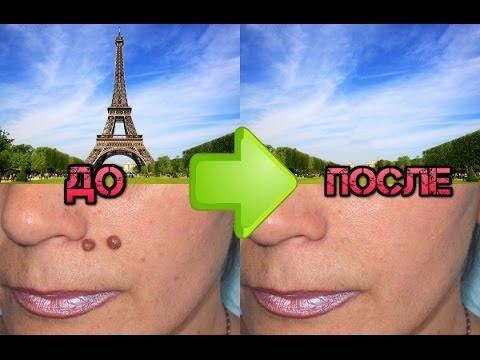 Как удалить ненужные элементы на фотографии