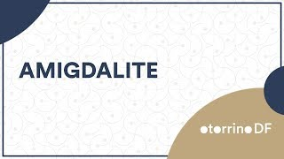 Amigdalite