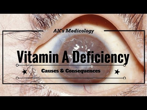 Vitamin A deficiency: Causes & Consequences | Dr. Akshay Kewlani