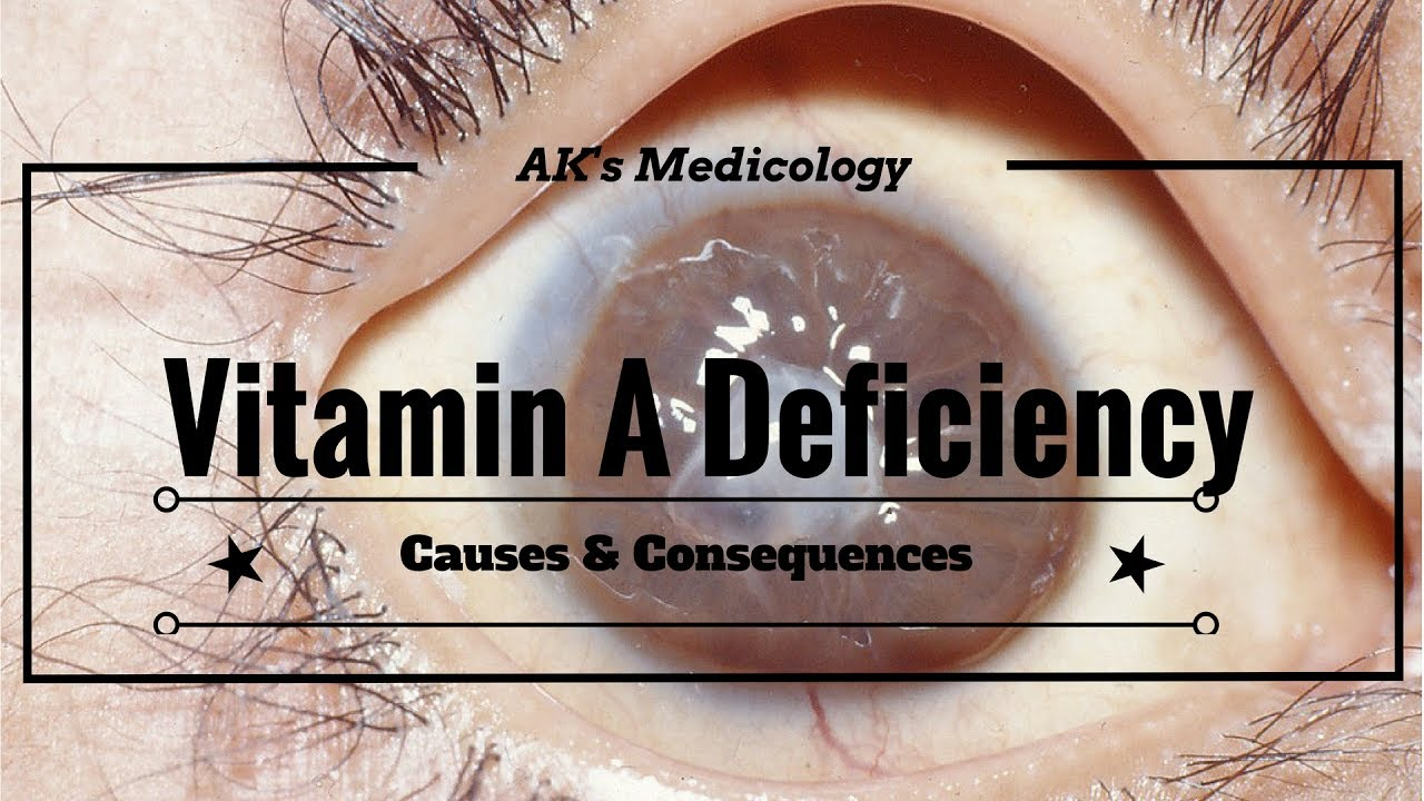 What causes a Vitamin A deficiency