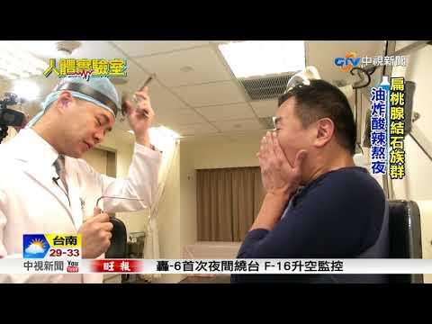 人體實驗室~口臭喉嚨卡卡 扁桃腺結石作祟│中視新聞 20180526
