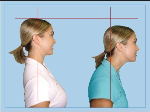 Why Cervical Kyphosis (Reversed Curve of Neck) Causes Disc ...