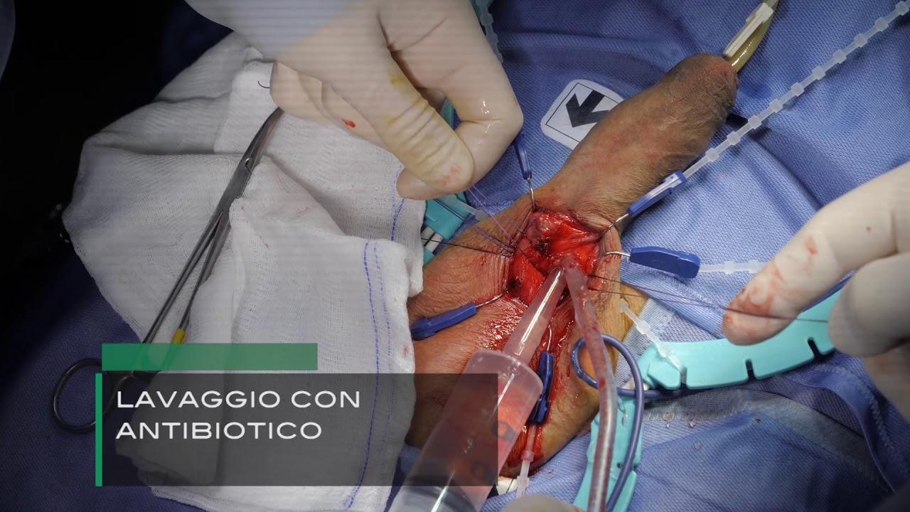 Protesi Genesi in fibrosi complessa cavernosa - dr. Pozza- Di Nicola