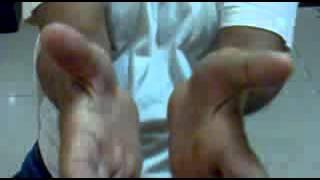 240P Thenar Atrophy secondary to Chronic Median Nerve Compression