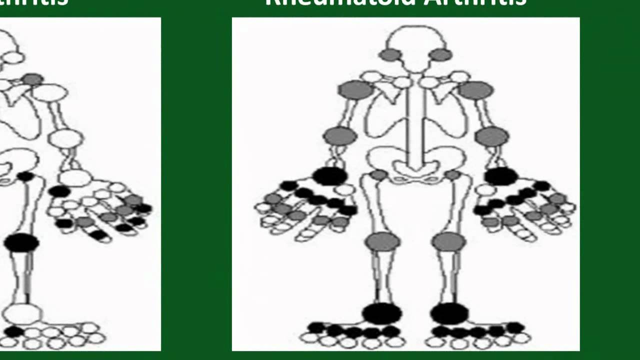 Rheumatoid Arthritis Versus Osteoarthritis Youtube