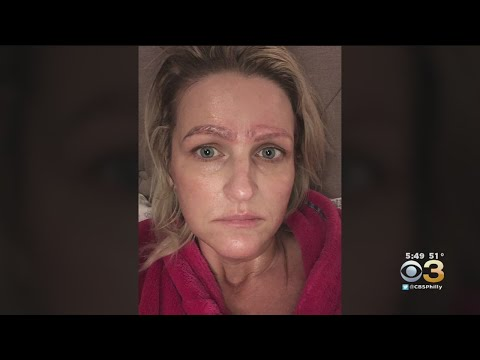 Bill Cunningham - VIDEO: Botched Beauty Treatment Leaves Woman With Four Eyebrows