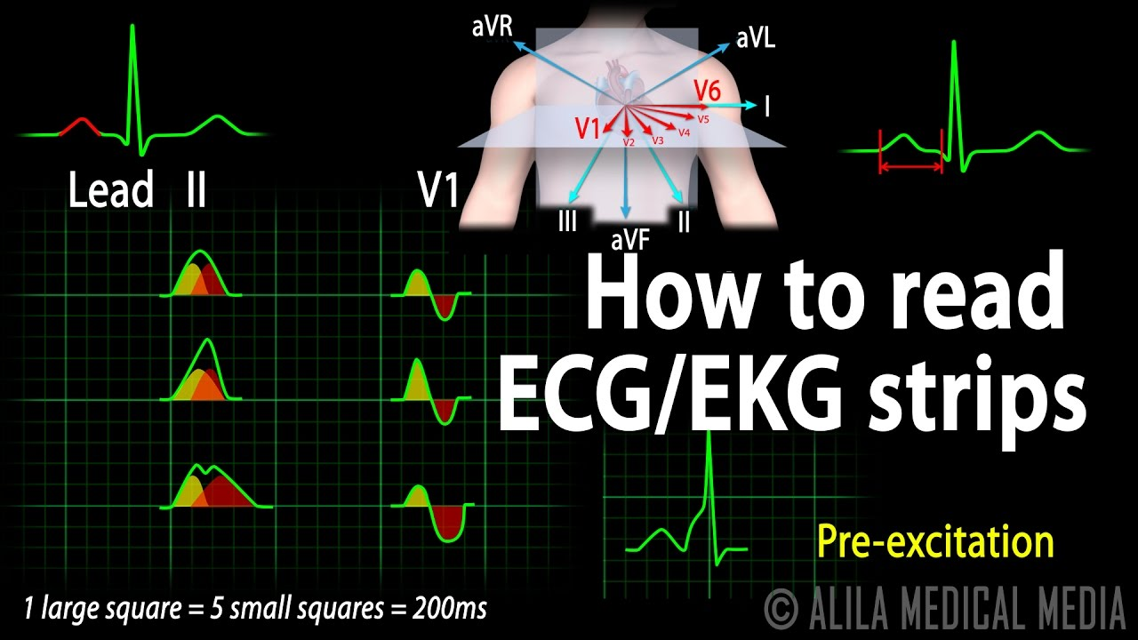 Animated ekg rhythm strip