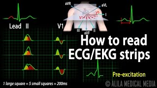 ECG Interpretation Basics, Animation.