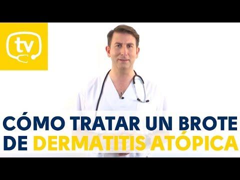 El tratamiento de los brotes de dermatitis atópica en niños