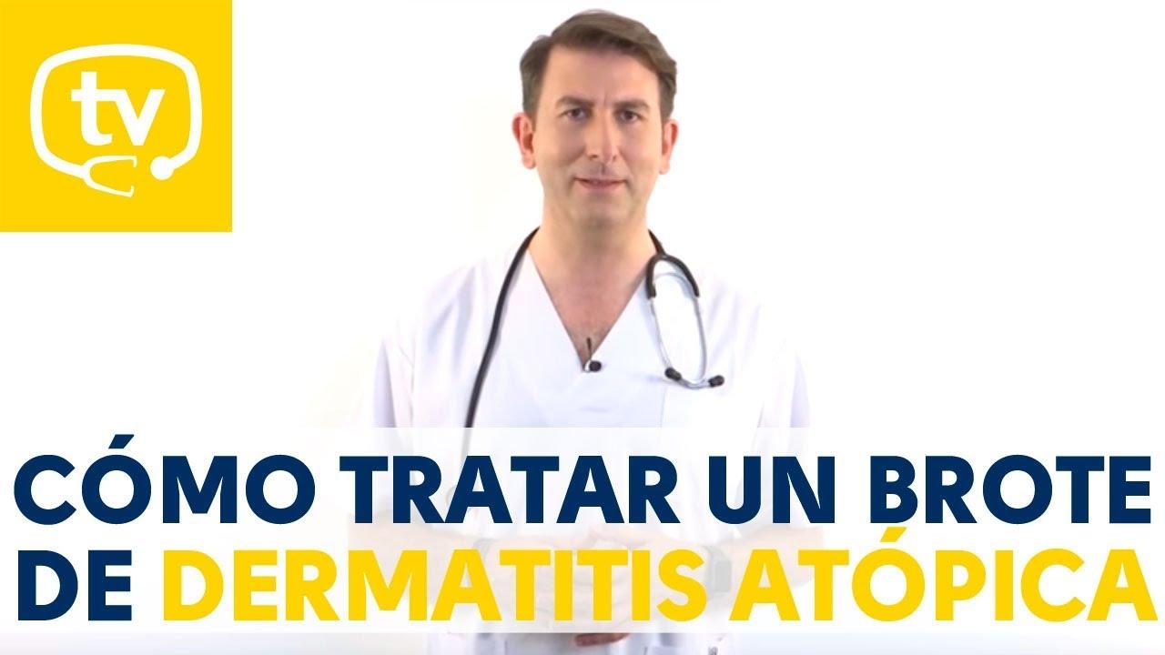 El Tratamiento De Los Brotes De Dermatitis Atopica En Ninos