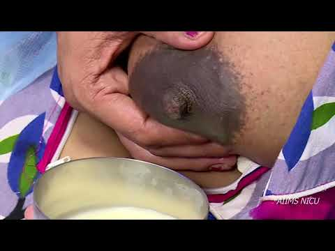 Download Expression of breast milk