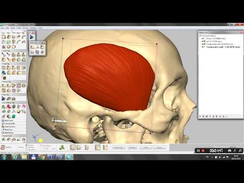 Facial Reconstruction with Geomagic Freeform