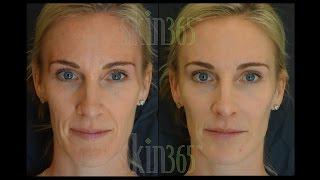 "Radiesse ""Dermal Filler"" immediate results and stimulates collagen to grow"