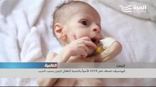 اليونسيف تصنف عام 2016 الأسوأ بالنسبة لأطفال اليمن بسبب الحرب