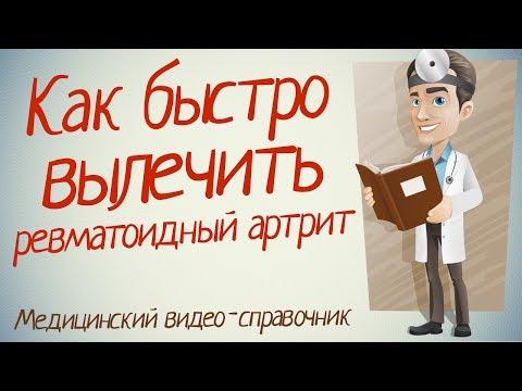 Ревматоидный артрит. Ревматоидный артрит лечение. Академия Целителей / Николай Пейчев