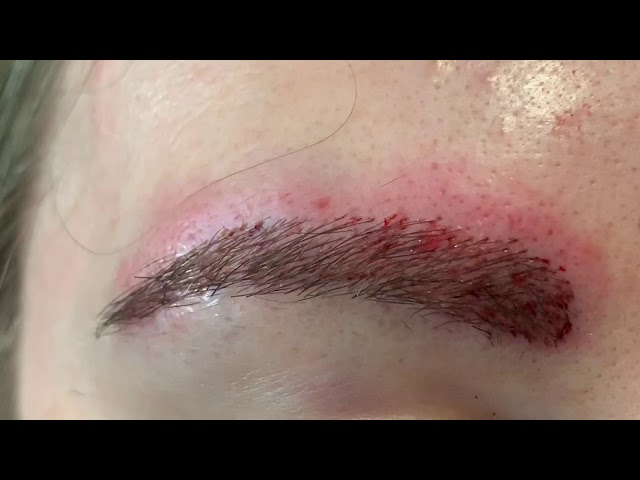 Dallas Overplucked Eyebrow Transplant Close-Up Immediately After