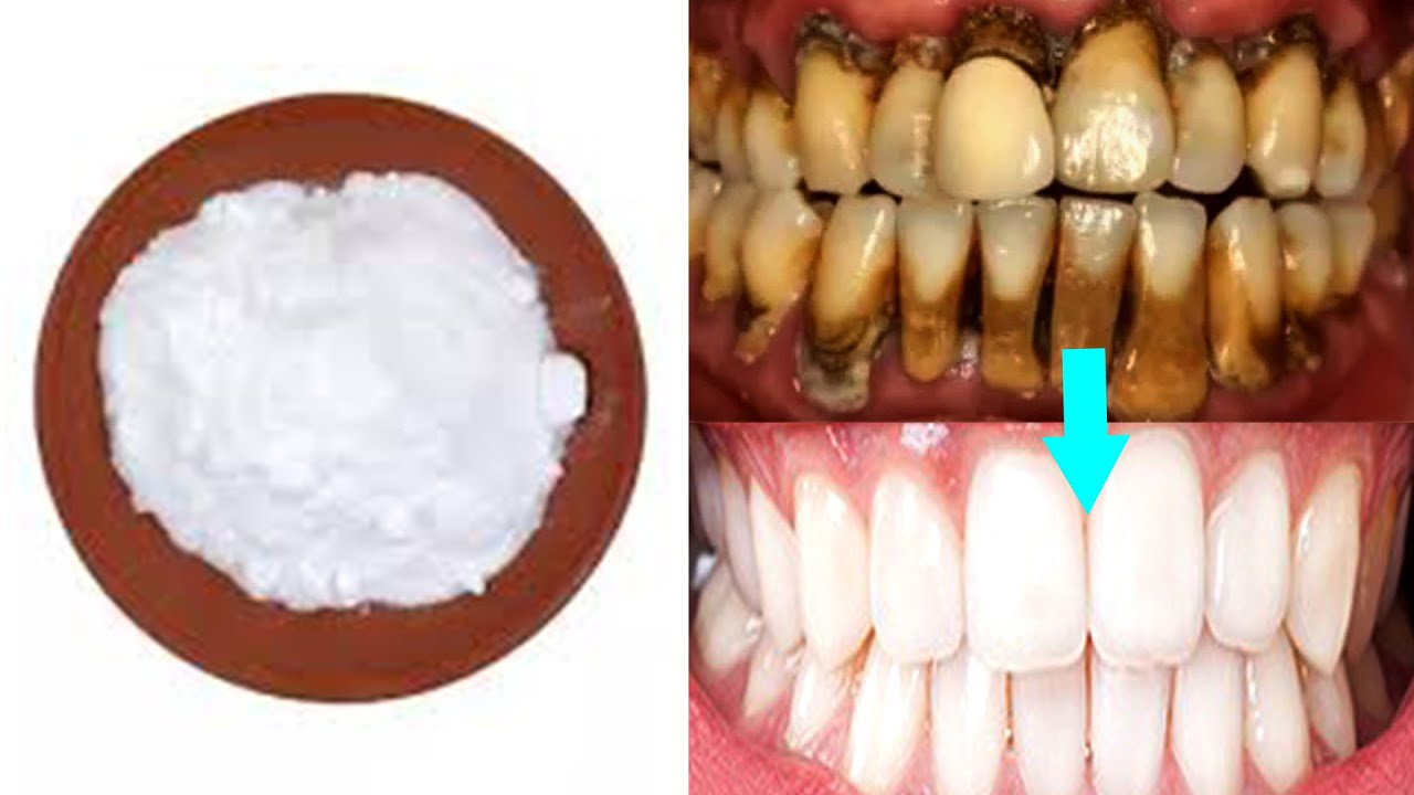 How To Whiten Teeth With Baking Soda and Ginger at Home