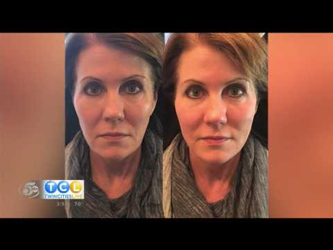 Contour Clinic - The Contour Lift on Twin Cities Live