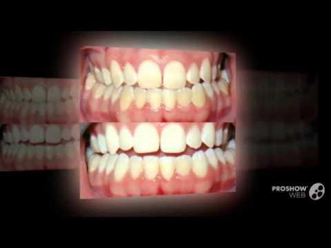 Гель для отбеливания зубов Teeth Whitening Pen, тестирование 21-07 .
