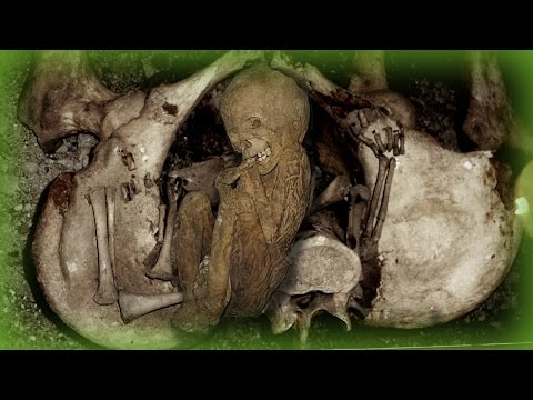 The Morbid Reality Of Coffin Births
