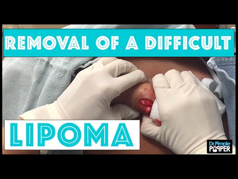 Removal of facial cysts by one stitch punch biosopy