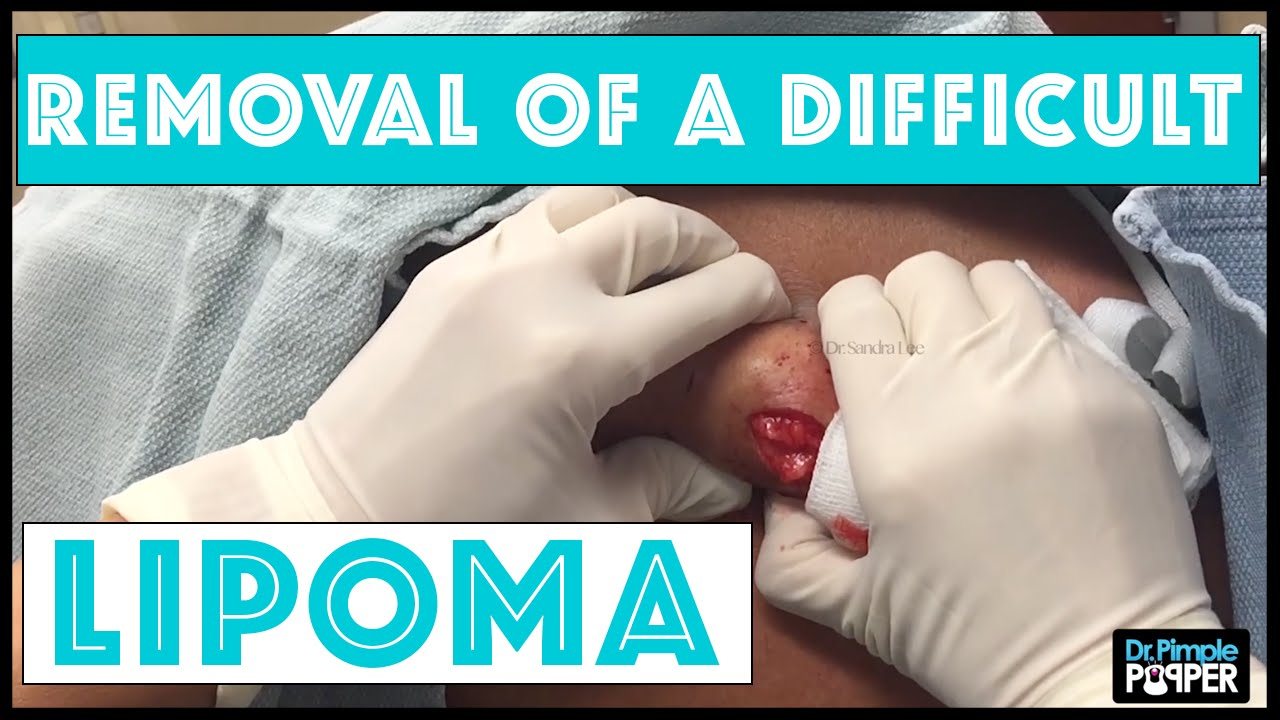 Lipoma removal the most effective method 81