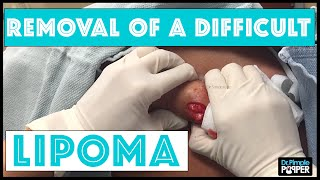 A Difficult Lipoma to remove from the Upper Back