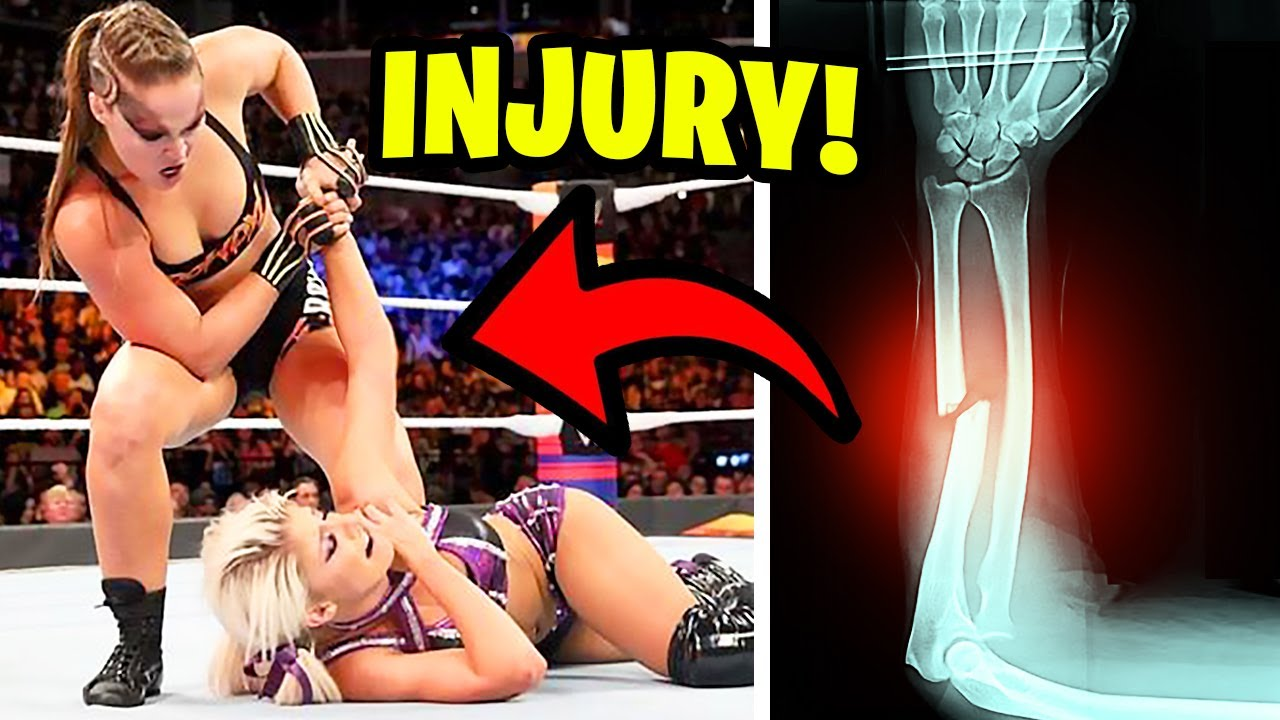 10 Times WWE Wrestlers Intentionally HURT Their Opponent!