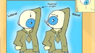 Cranial Nerve 4 Palsy | Tim Root