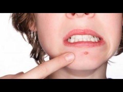 DermTV - Acne 101: Acne Causes [DermTV.com Epi #121]