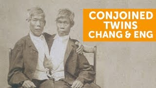 World Famous Conjoined Twins, Chang and Eng Bunker