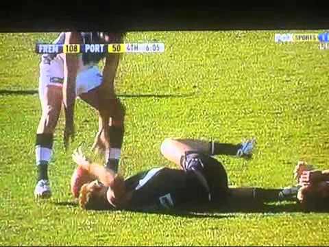 Michael Barlow Breaks Leg