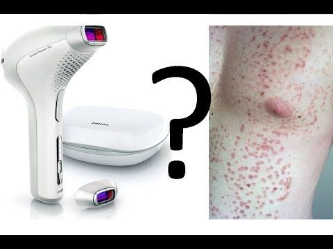 Ipl Laser Hair Removal Bad Safe Side Effects Youtube