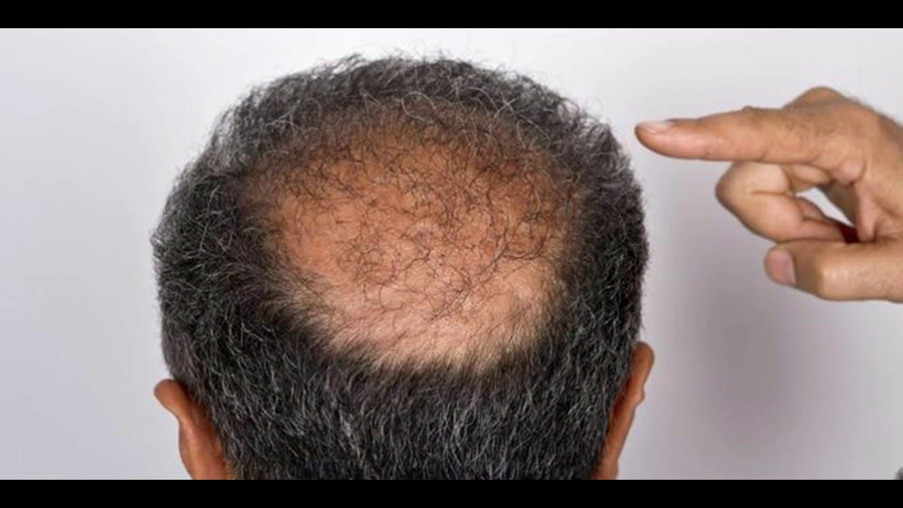 hair loss treatment | male pattern baldness cure - youtube