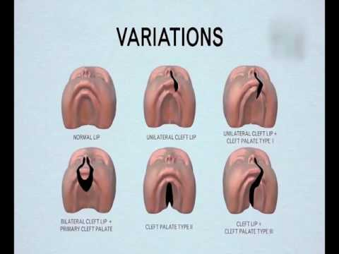 CLEFT LIP & PLATE ANIMATION