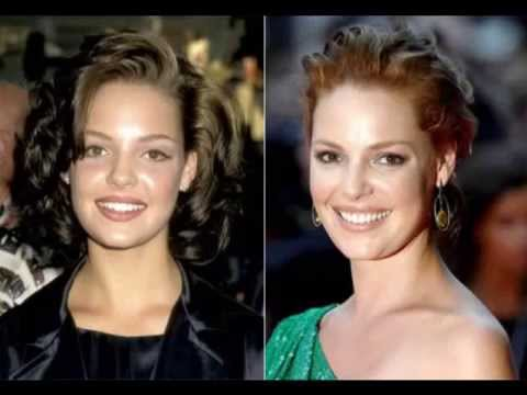 hollywood stars and veneers  before and after   YouTube