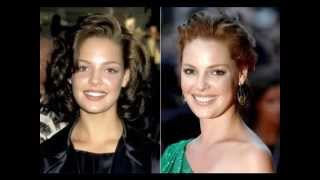 hollywood stars and veneers ( before and after )