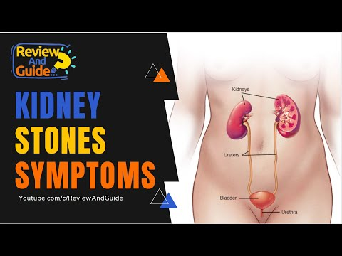 Kidney Stones Symptoms, Treatment Options, Diet and Causes