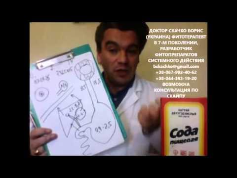 Лечение содой простатита подагры диабета рака от кашля хронический простатит повышенное давление