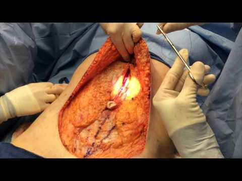 Abdominoplasty by Dr. Dunkley a Utah Cosmetic Surgeon