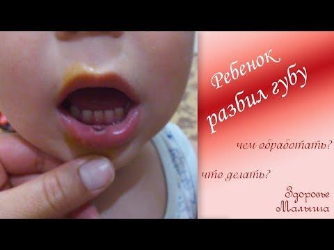 Как убрать гематому на губе после удара
