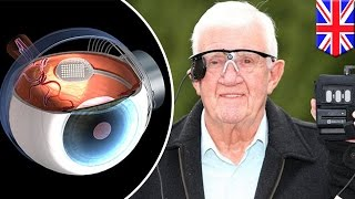 Bionic eye: UK blind patients to be fitted with bionic eye to restore partial eyesight - TomoNews