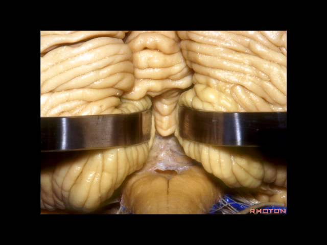 Cerebellopontine Angle and Fourth Ventricle - Part 2 of 2